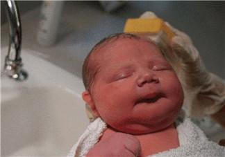 顺产头挤变形多久恢复 如何预防宝宝顺产头变形
