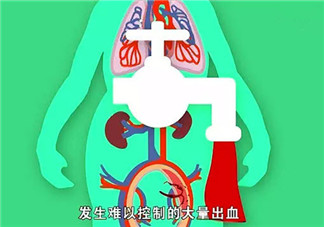 哪些人更容易产后出血 产后出血发病症状(如何预防产后大出血)