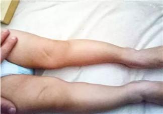 婴儿为什么是青蛙腿 宝宝青蛙腿用不用绑腿