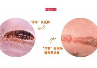 宝宝被臭虫咬了症状图片 宝宝被臭虫咬和蚊子咬症状对比图片区别
