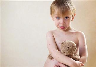 宝宝长水痘的原因 如何发现宝宝长水痘